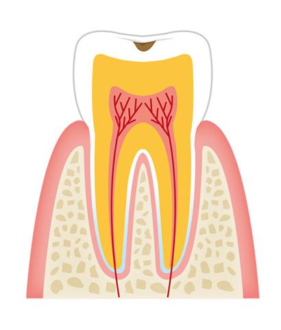 tooth1 - 一般歯科