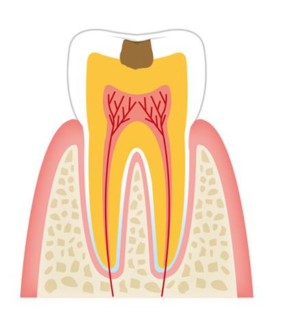 tooth2 - 一般歯科