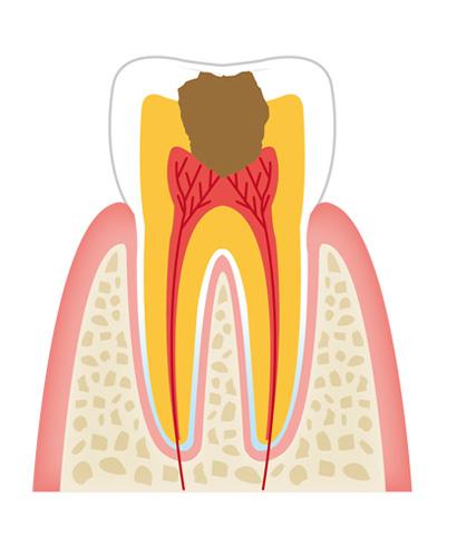 tooth3 - 一般歯科
