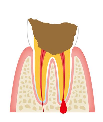 tooth4 - 一般歯科
